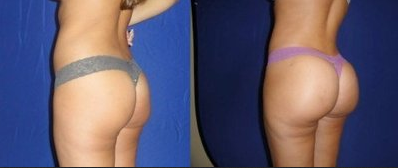Butt shots, PMMA Butt Shots, buttocks injections, brazilian butt lift,