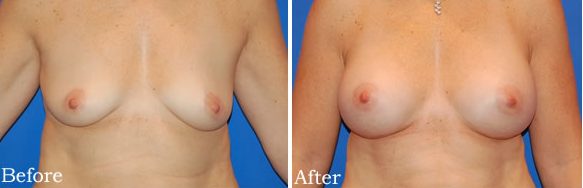 breast, before, after, sagging