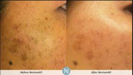X factor, pigment reducer, acne, uneven skin tones